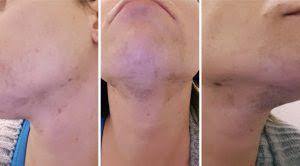 laser hair removal for trans women