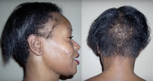 back and treat a thinning hairline