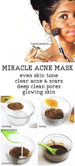 clear acne with nutmeg