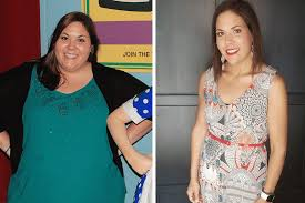 gastric sleeve success story sarah