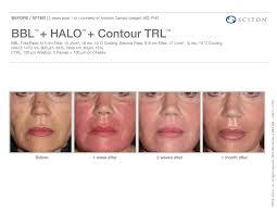 laser treatments reverse aging