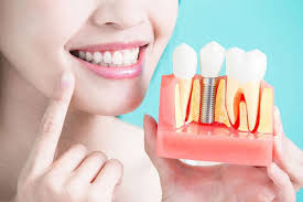 Dental Implant Placement: What You Need to Know: Stuart J. Froum, DDS: Periodontists