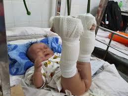 Con trai 4 tháng tuổi nghi bị cha ruột 'chơi đá' đánh đến xuất ...