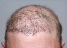 chemotherapy induced alopecia