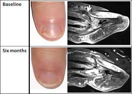 mri of psoriatic nail disease pre and