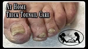 elderly toenails cutting thick toenails