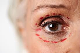 cosmetic surgery quiz liposuction