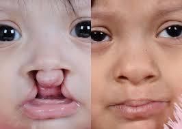 bilateral cleft lip court cutting md