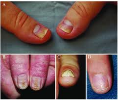 nail changes in psoriatic arthritis