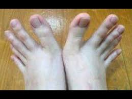 woman s toes look just like fingers