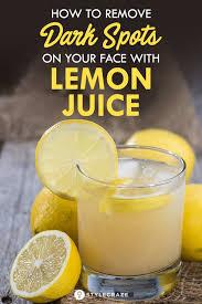 lemon juice for dark spots on face