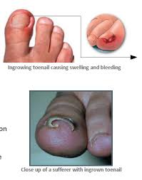 ingrowing toenail protector