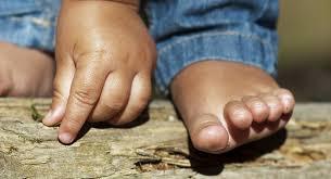 ingrown toenail babycenter