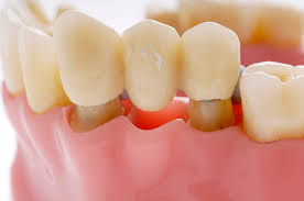 "Image result for dental implant treatment"""