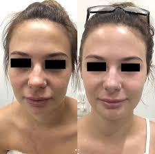 Facial Treatment Sydney | Payot Facials | Nirvana Beauty