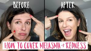 how to cover melasma and redness