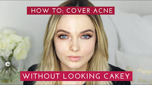 how to cover acne scars without