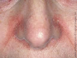 seborrheic dermais national eczema