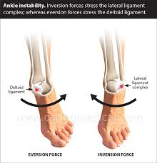 chronic ankle sprain and inility