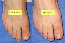 cutera laser for nail fungus before and
