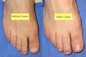 cutera laser for nail fungus before and