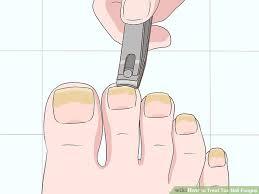 wear with toenail fungus 2019