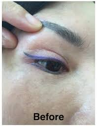 laser eyebrow embroidery tattoo removal