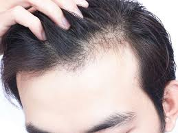 decode the diffe types of alopecia