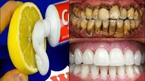 magical teeth whitening remedy get
