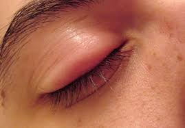 how to get rid of puffy eyes 7 best
