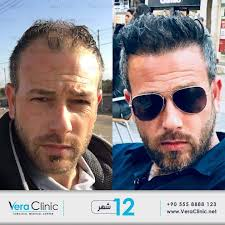 before and after vera clinic