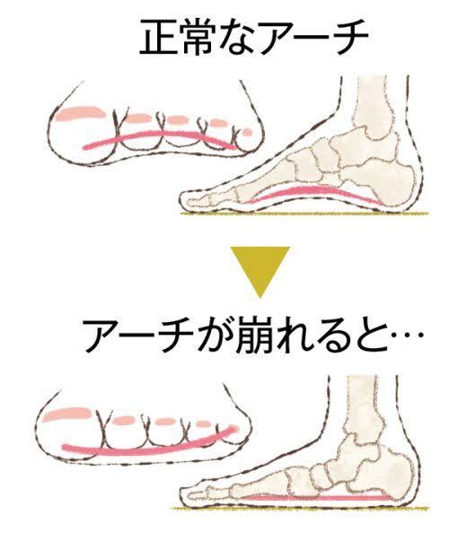 """「足 アーチ」の画像検索結果"""""""