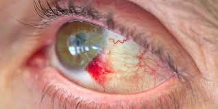 what is a subconjunctival hemorrhage