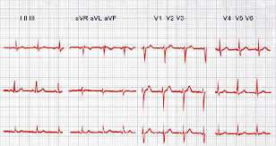 ecg devices for heart rhythm monitoring