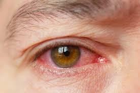 are red eyes a symptom of coronavirus