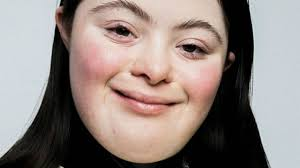 Chi è Ellie Goldstein, la prima modella Gucci con la sindrome di Down