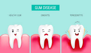 10 best home remes to cure gum