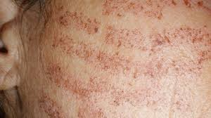 laser hair removal burns causes