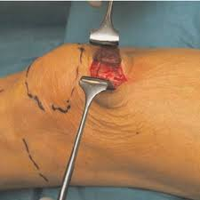 suprapatellar nailing of tibial fractures