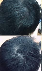 fast hair loss solution health