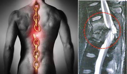 "Image result for lesion medular"""