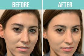 do eye color changing drops and balms