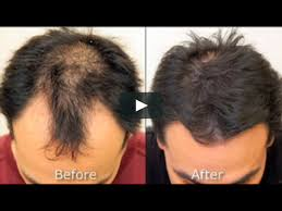 neograft automated fue hair transplant