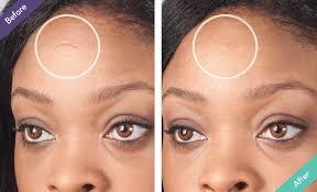 scar filler makeup topical filler for