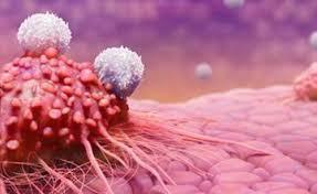 Dấu hiệu người ung thư sắp chết. Ung thư chữa khỏi được không?