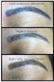 permanent makeup correction pigmenta