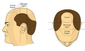 crown hair transplant growth time
