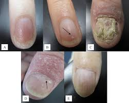 psoriatic arthritis and nail changes