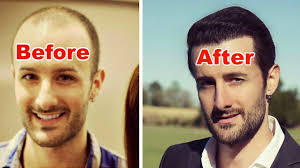how many hair transplant grafts do you