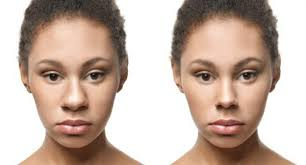 nose appear thinner without surgery